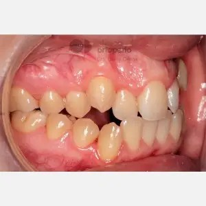 Lingual Orthodontics. Class III, open bite, severe overcrowding, extractions. 7