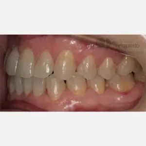 Orthodontics for adults. Lingual Orthodontics. Anterior crossbite and overcrowding 9