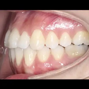 Lingual Orthodontics. Treatment of complex malocclusion class III and open bite in adult patient 9
