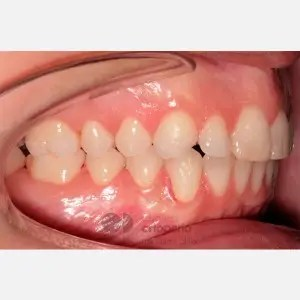 Lingual Orthodontics. Overbite excess, gingival smile, mild upper overcrowding 7