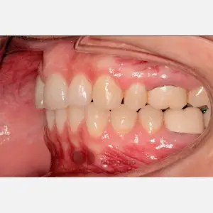 Lingual Orthodontics. Extraction of two premolars. Treatment of the upper arch only 7