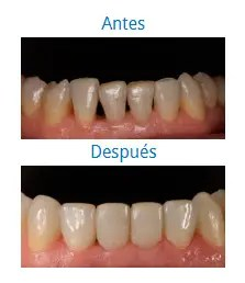 Estética Dental 7