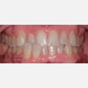 Orthodontics for adults. Lingual Orthodontics. Anterior crossbite and overcrowding 10