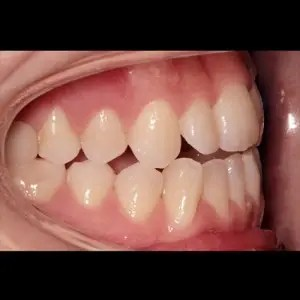 Lingual Orthodontics. Treatment of complex malocclusion class III and open bite in adult patient 10