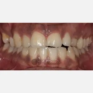 Lingual Orthodontics. Impacted canines. Multidisciplinary case: Orthodontic treatment and Implants 10