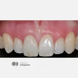 Corticotomy + Lingual Orthodontics + Post-extraction immediate implant 1