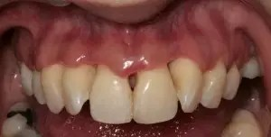 Porcelain veneers to solve black triangles caused by bone and gum loss due to periodontal disease 0