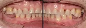 Molar intrusion with micro-implants, without orthodontic appliances 0