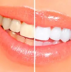 Teeth whitening 0