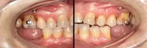 Molar intrusion with micro-implants, without orthodontic appliances 1