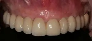 Dental implants without surgery 1