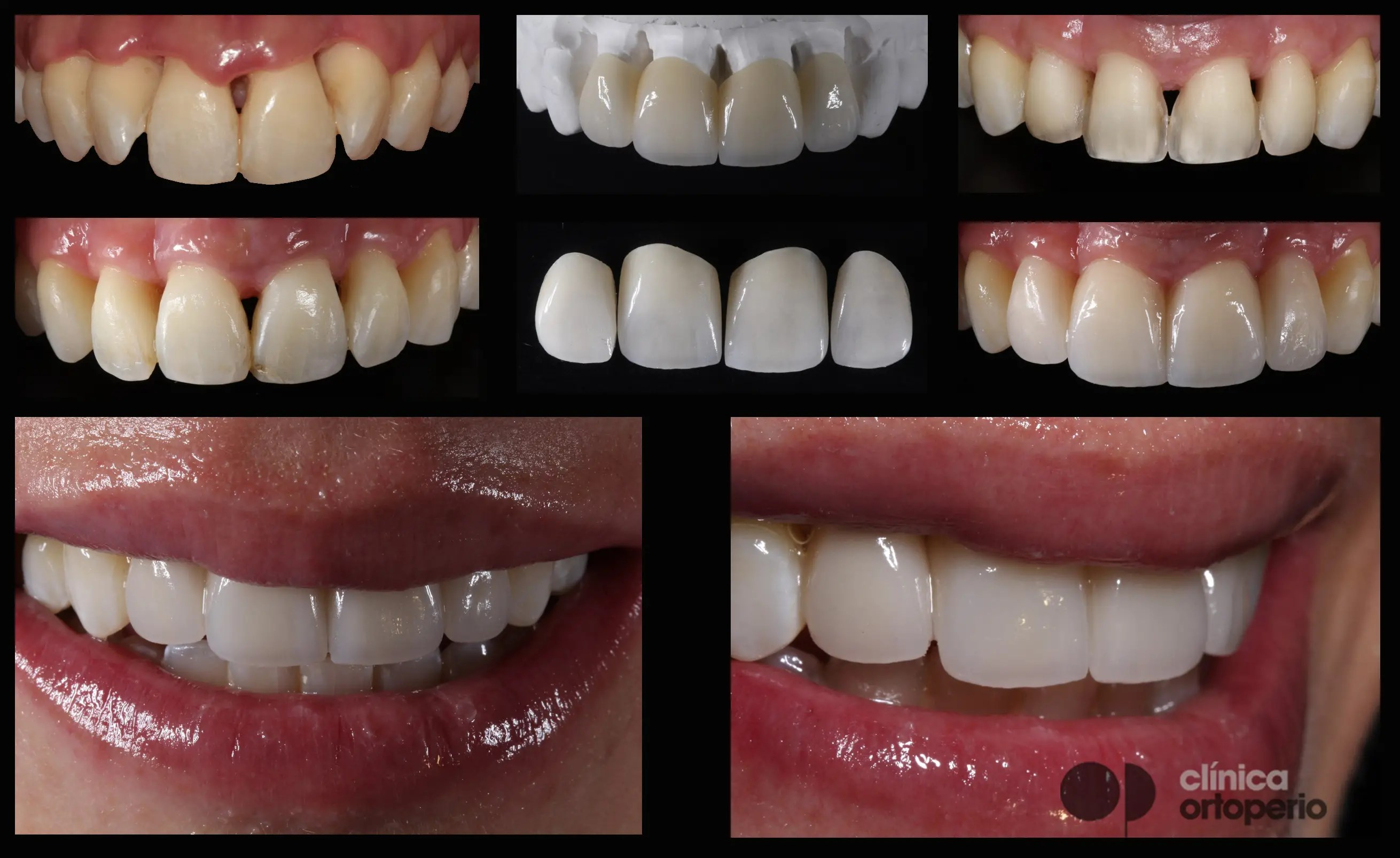 Porcelain veneers to solve black triangles caused by bone and gum loss due to periodontal disease 2