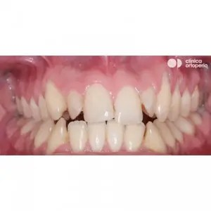Orthodontic treatment. Class III, open bite, crossbite, overcrowding, receding gums. Treatment by gum graft, corticotomy and bone graft, and orthodontic treatment with skeletal anchorage 2