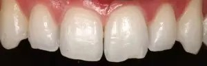 Incisors and upper canines restoration with composite veneers 1