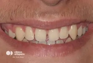 Multidisciplinary treatment: Orthodontic treatment and porcelain veneers. Class 3, diastema (gap between teeth). 1
