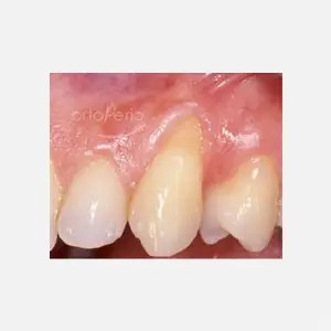 Gum loss affecting canine tooth 0