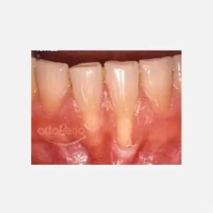 Gum loss affecting lower incisors 0