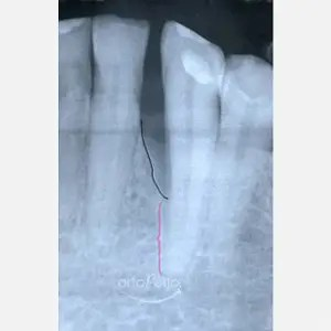Regeneration of bone loss caused by periodontitis 0