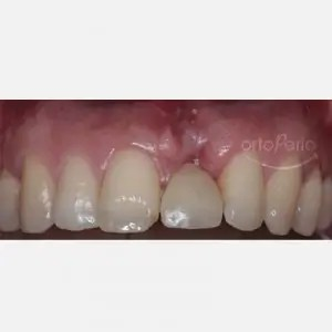 Severe bone and gum loss: Bone graft+ Implant 3