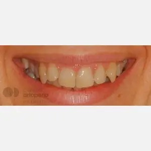 Lingual Orthodontics: Class II, extractions, micro-implants, implants 12