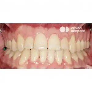 Orthodontic treatment. Class III, open bite, crossbite, overcrowding, receding gums. Treatment by gum graft, corticotomy and bone graft, and orthodontic treatment with skeletal anchorage 3