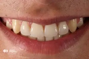 Multidisciplinary treatment: Orthodontic treatment and porcelain veneers. Class 3, diastema (gap between teeth). 2