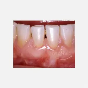 Gum loss affecting lower incisors 1