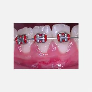 Recession before orthodontic treatment 2