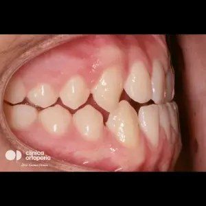 Multidisciplinary treatment: Orthodontic treatment and porcelain veneers. Class 3, diastema (gap between teeth). 5