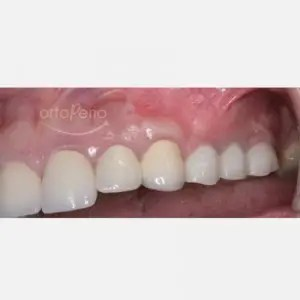 Bone and gum reconstruction to obtain papillae with implants on molars 5