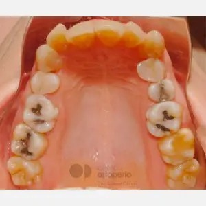 Lingual Orthodontics: Class II, extractions, micro-implants, implants 4