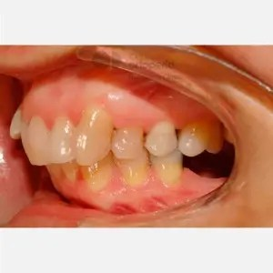 Lingual Orthodontics: Class II, extractions, micro-implants, implants 8