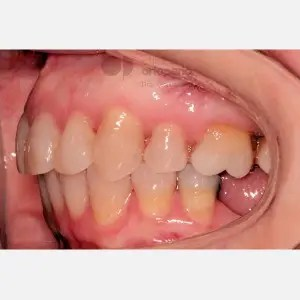 Lingual Orthodontics: Class II, extractions, micro-implants, implants 9