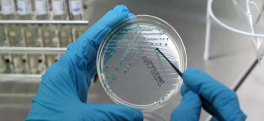 Legionella, due casi nell'Orvietano. In corso indagini epidemiologiche, esclusa contaminazione acquedotto comunale