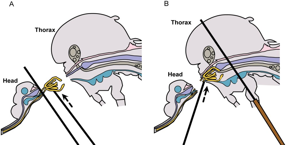 medium resolution of mosquito diagram removal of salivary glands a lift salivary glands up away from head b tease salivary glands from thorax