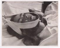 """Foto por Nickolas Muray. Frida Kahlo. Tracción en un hospital de la Ciudad de México. Frida escribió al frente """"1940 Completamente fregada)"""