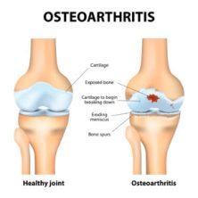 Osteoarthritis or rheumatoid arthritis