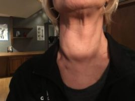 Lymphatic system Swelling in Neck