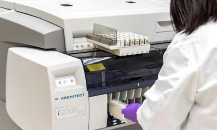 Abbott anuncia la disponibilidad de su prueba de anticuerpos COVID-19 en Chile, para uso en laboratorios
