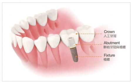 什麼是植牙,這些假牙做出來的密合度通常會比一般金屬類假牙來的好,維港歡樂口腔建議大家要選擇專業的牙醫,兩種假牙都有金屬成分, OSSTEM IMPLANT - 奧齒泰有限公司-亞洲植體第一品牌