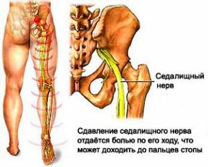 scaphoid fracture ct scan
