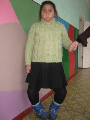 Чем вызвана болезнь Блаунта у детей симптомы и лечение