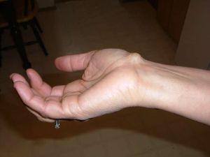 Нервные узлы (ганглии). Причины образования ганглиона и особенности его терапии Ганглии определение