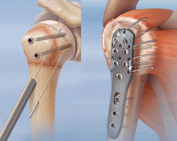 Снятие пластины после остеосинтеза. Удаление металлоконструкций после перелома лодыжки