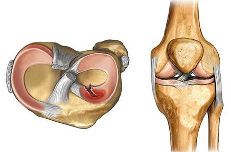 térdfájdalom séta után 1. fokozatú boka artrózis és kezelés