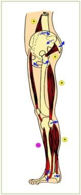 cadena lesional muscular