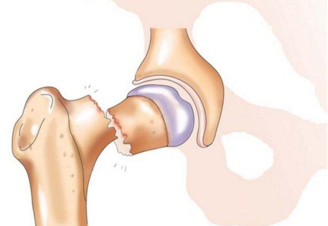 перелом шейки бедра реабилитация | Остеопороз, артрит, артроз ...