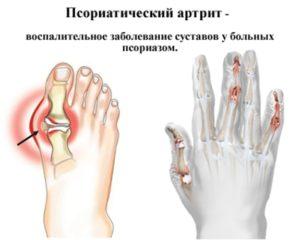 Псориатический артрит симптоматика методы диагностики и лечения