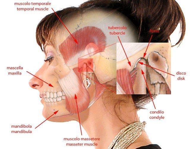 L'acufene e' riferito prevalentemente dallo stesso lato dell'articolazione temporo mandibolare interessata