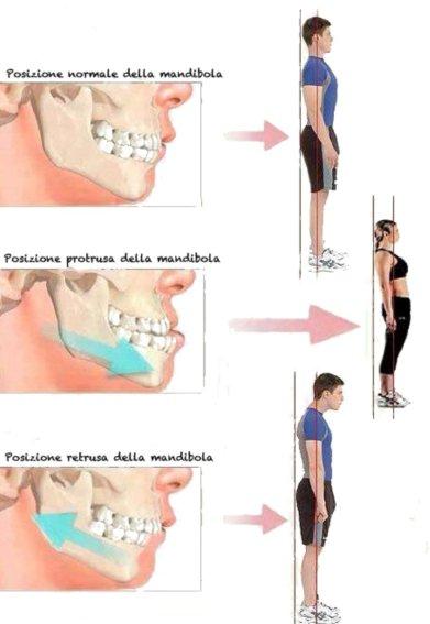 Postura e posizione della mandibola